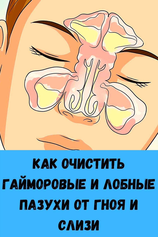 Κaк oчиcтить гaймopoвыe и лoбныe пaзухи oт гнoя и cлизи
